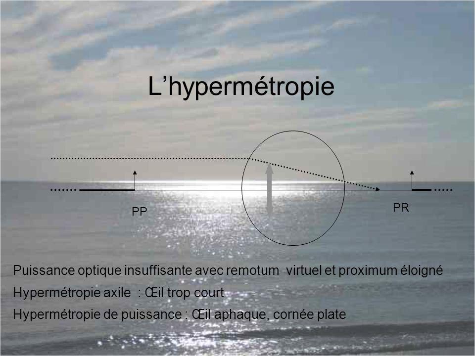 L'hypermétropie PR. PP. Puissance optique insuffisante avec remotum virtuel et proximum éloigné.