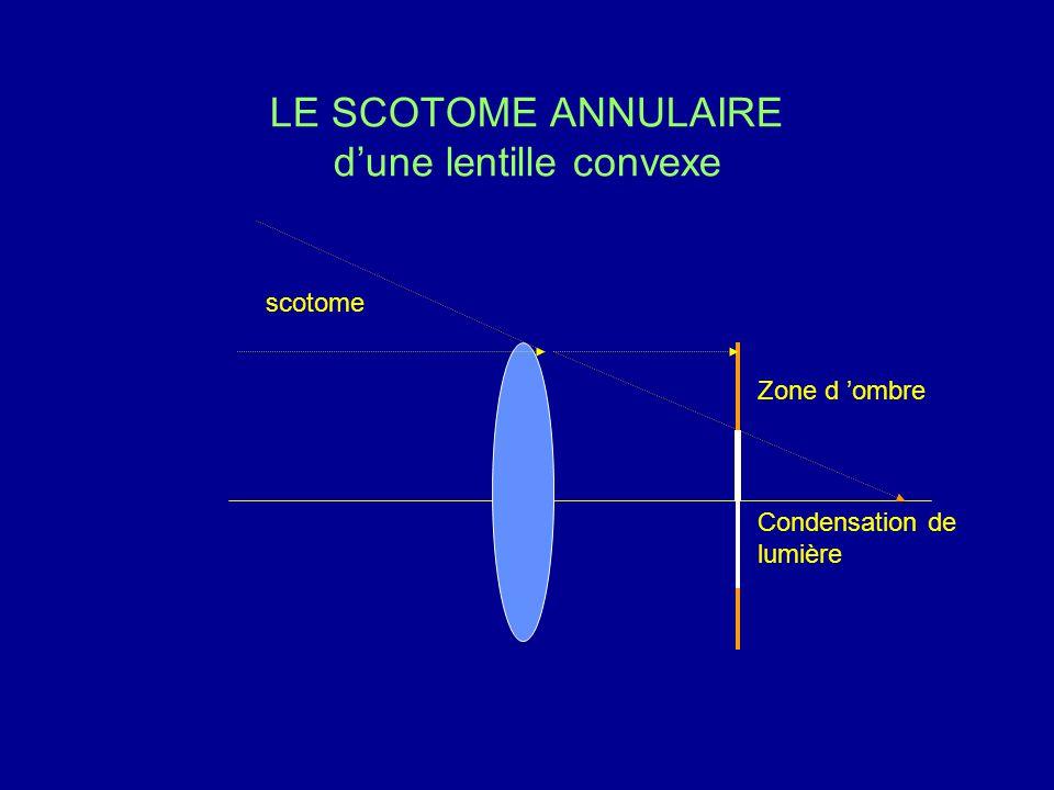LE SCOTOME ANNULAIRE d'une lentille convexe