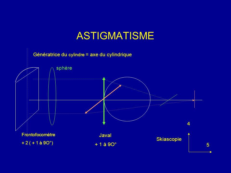 ASTIGMATISME Génératrice du cylindre = axe du cylindrique sphère 4