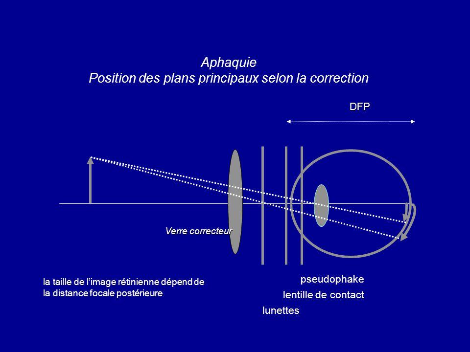 Aphaquie Position des plans principaux selon la correction