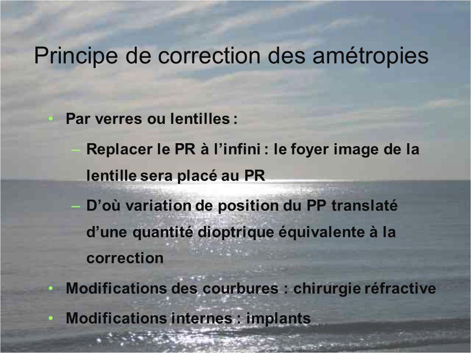 Principe de correction des amétropies