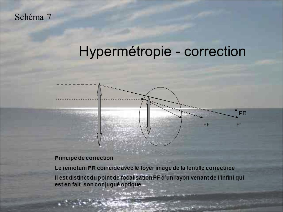 Hypermétropie - correction