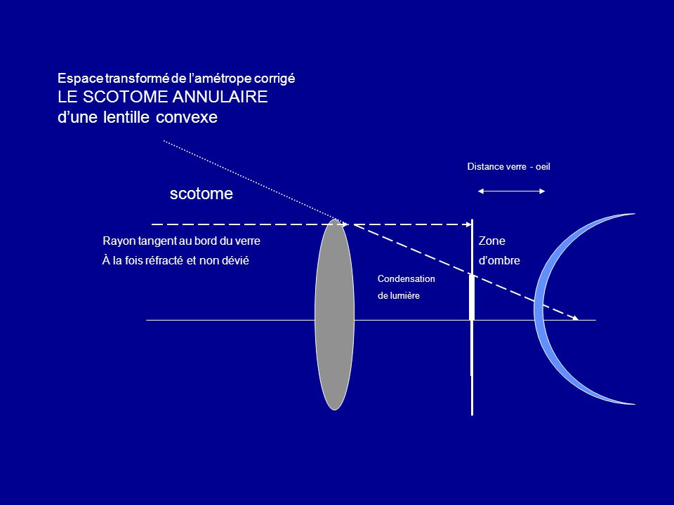 Espace transformé de l'amétrope corrigé LE SCOTOME ANNULAIRE d'une lentille convexe