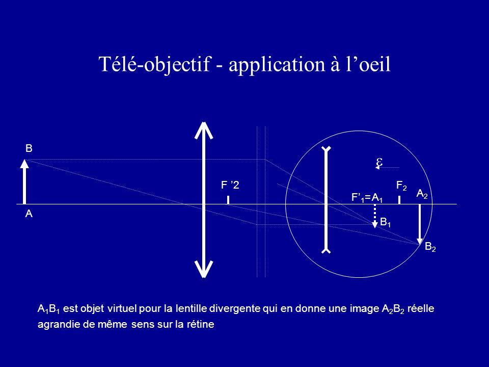 Télé-objectif - application à l'oeil