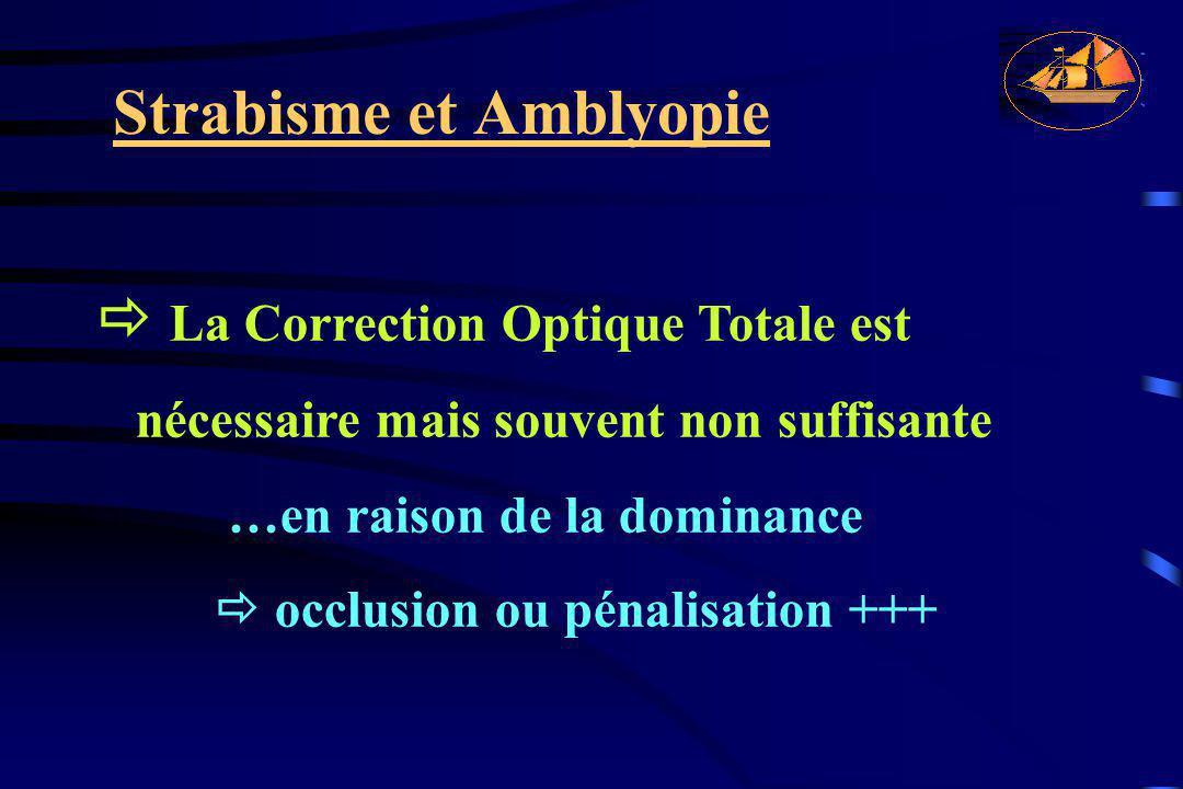 Strabisme et Amblyopie