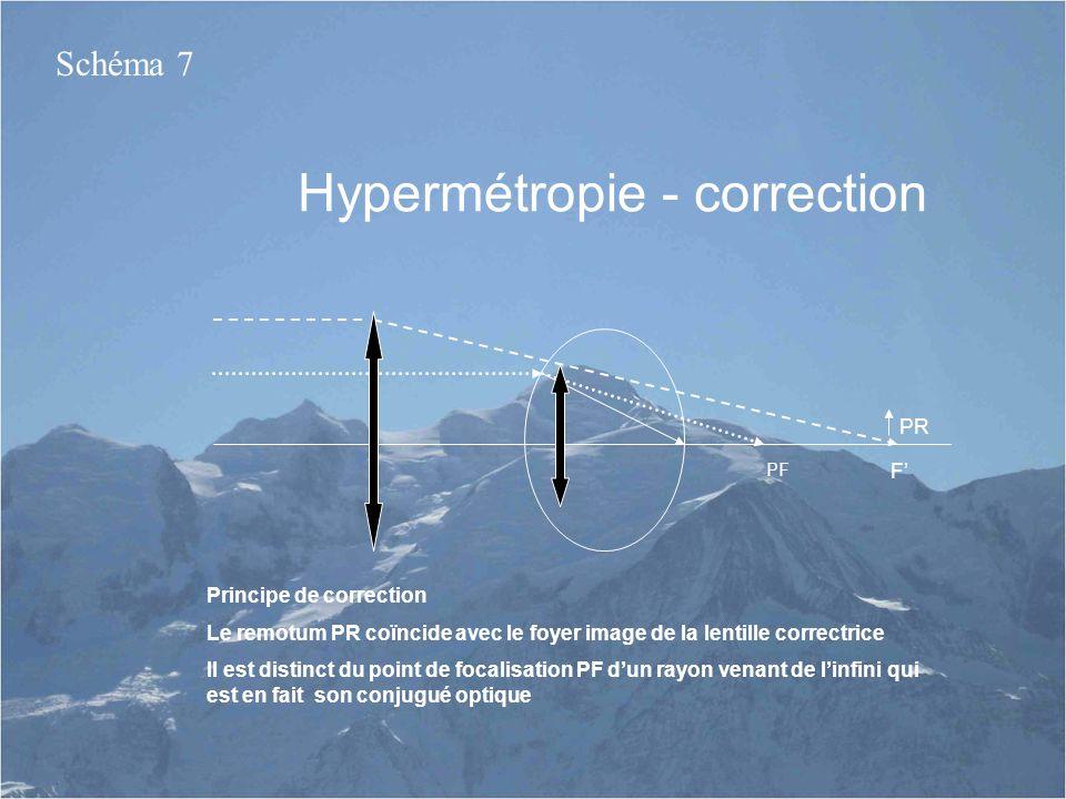 Hypermétropie - correction
