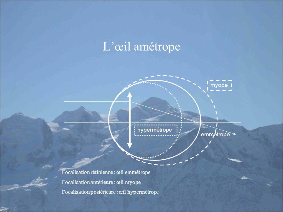 L'œil amétrope myope hypermétrope emmétrope