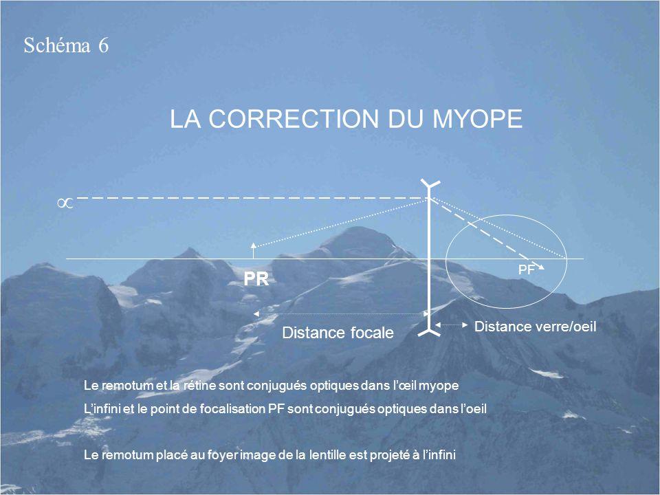 LA CORRECTION DU MYOPE  Schéma 6 PR Distance focale