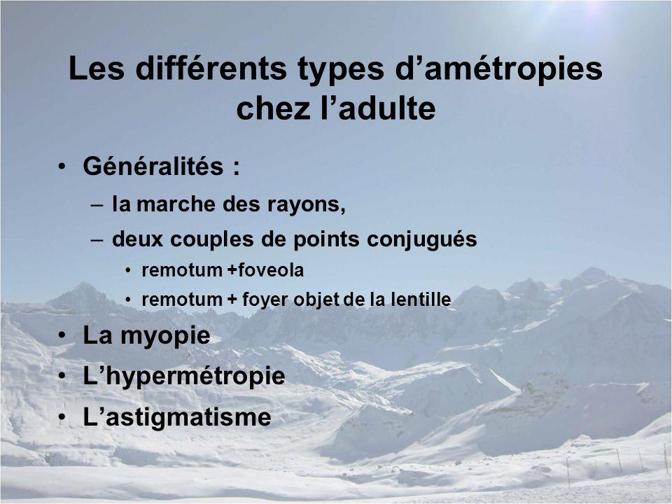 Les différents types d'amétropies chez l'adulte
