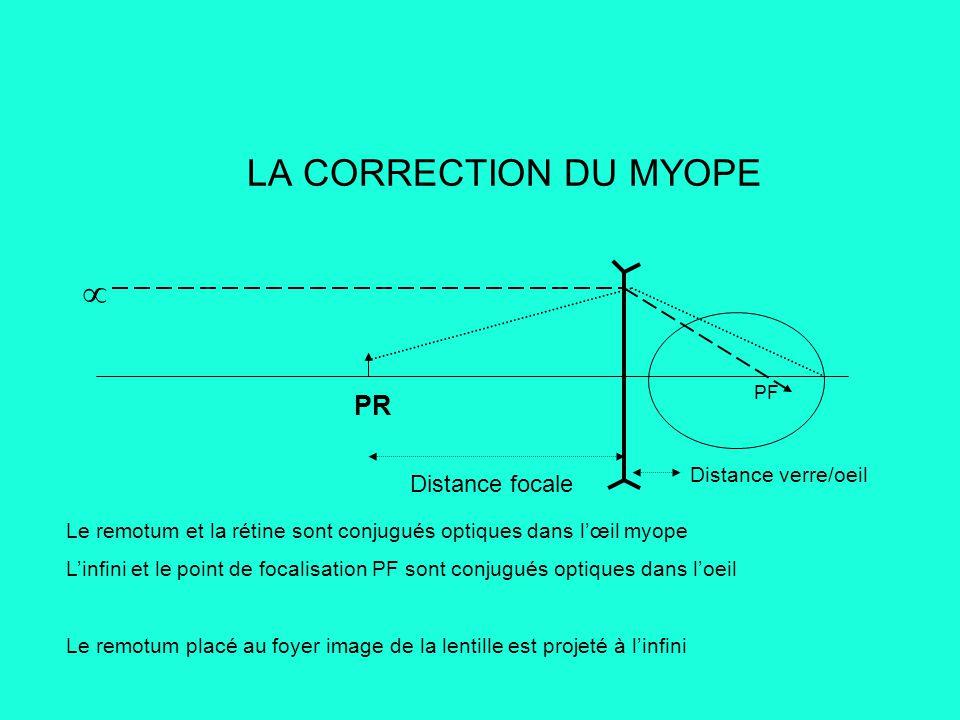 LA CORRECTION DU MYOPE  PR Distance focale Distance verre/oeil