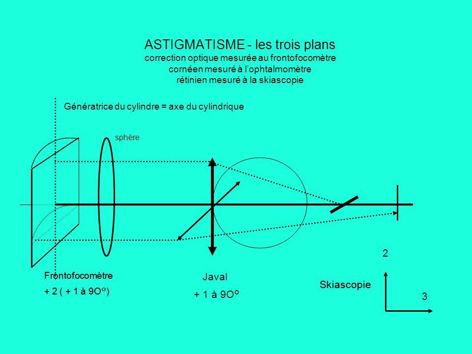 ASTIGMATISME - les trois plans correction optique mesurée au frontofocomètre cornéen mesuré à l'ophtalmomètre rétinien mesuré à la skiascopie