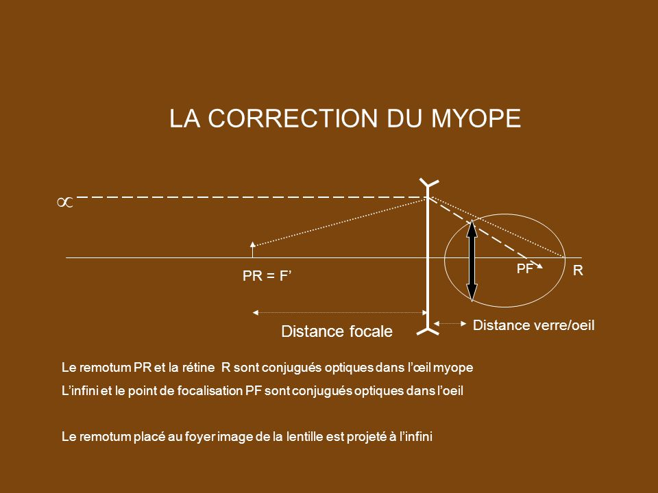 LA CORRECTION DU MYOPE  Distance focale R PR = F' Distance verre/oeil
