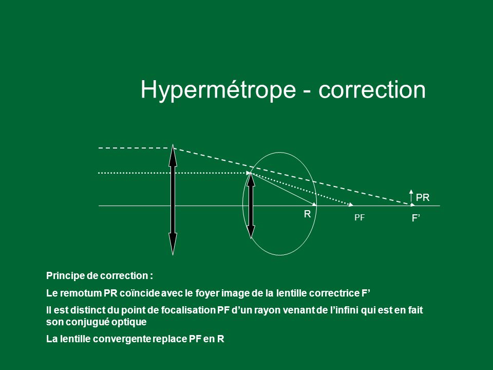 Hypermétrope - correction