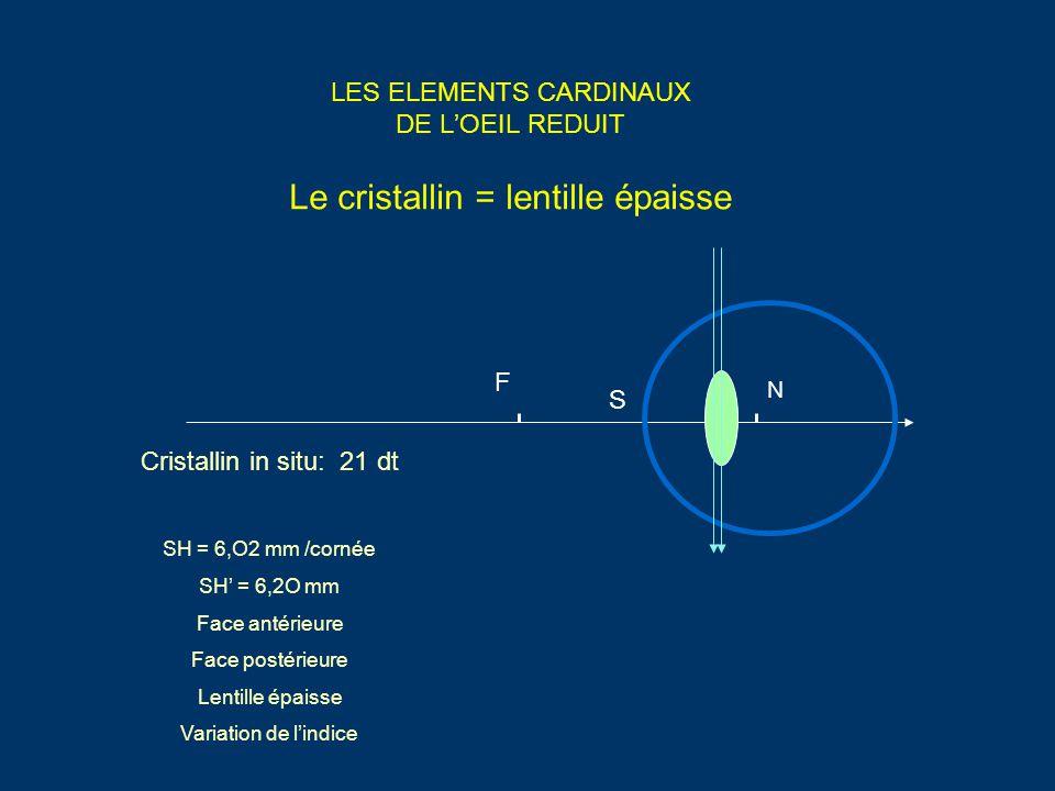 LES ELEMENTS CARDINAUX DE L'OEIL REDUIT Le cristallin = lentille épaisse