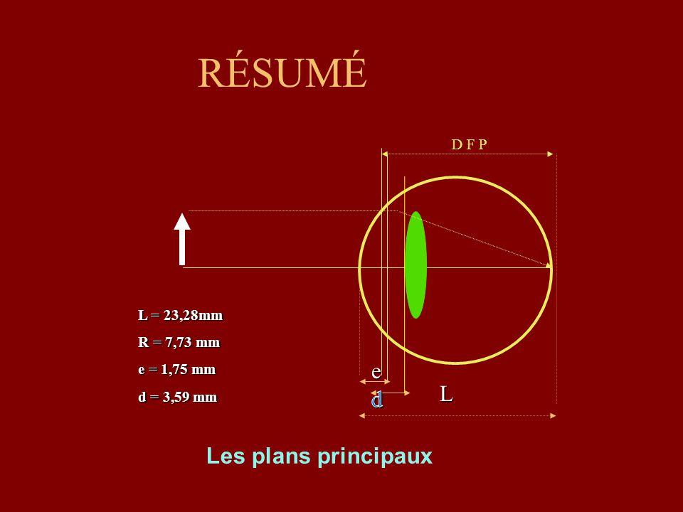 RÉSUMÉ e L d Les plans principaux D F P L = 23,28mm R = 7,73 mm