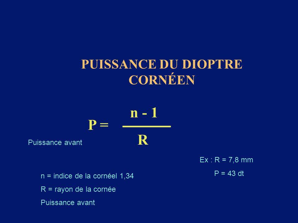 PUISSANCE DU DIOPTRE CORNÉEN