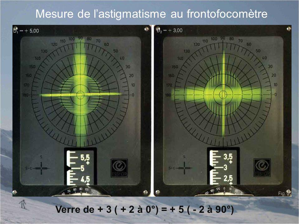 Mesure de l'astigmatisme au frontofocomètre