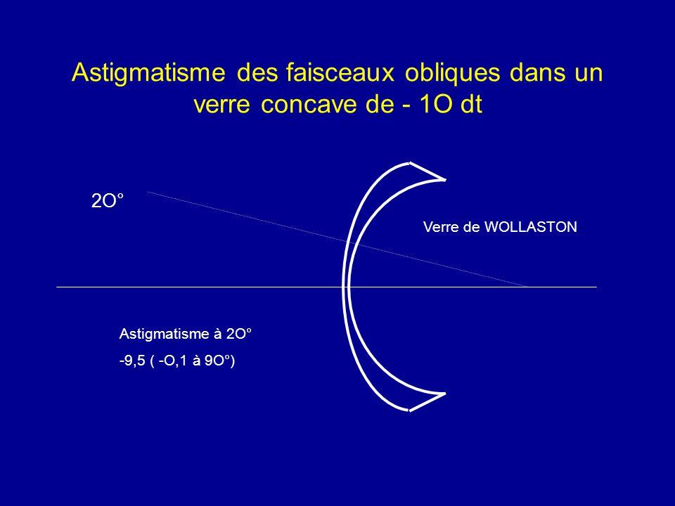 Astigmatisme des faisceaux obliques dans un verre concave de - 1O dt