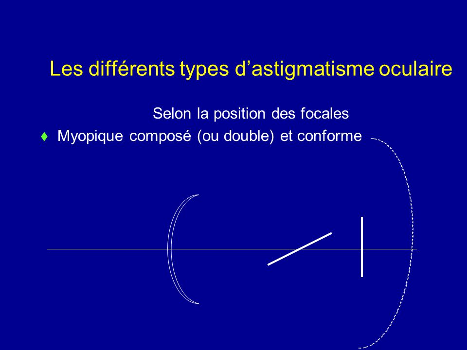 Les différents types d'astigmatisme oculaire