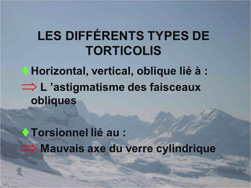 LES DIFFÉRENTS TYPES DE TORTICOLIS