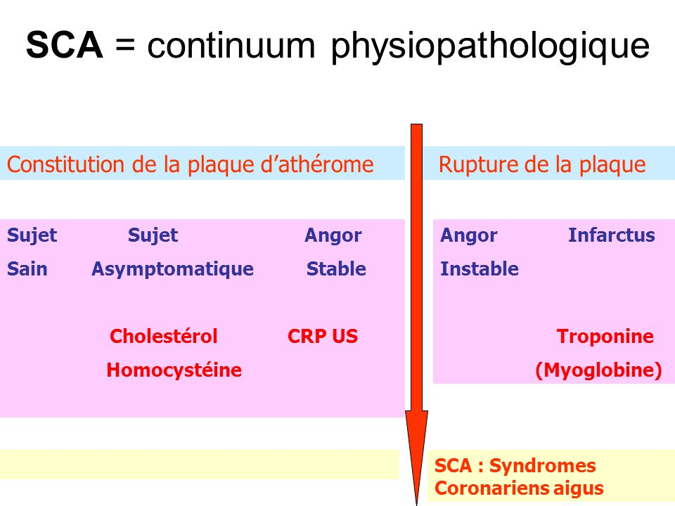 SCA = continuum physiopathologique