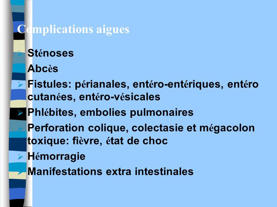 Complications aigues Sténoses Abcès