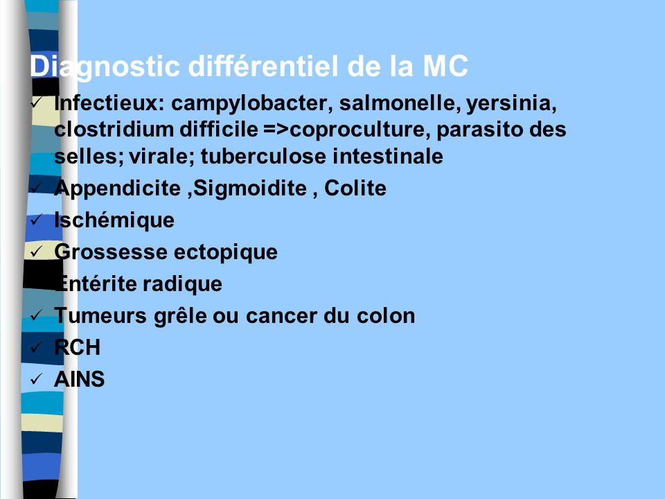 Diagnostic différentiel de la MC