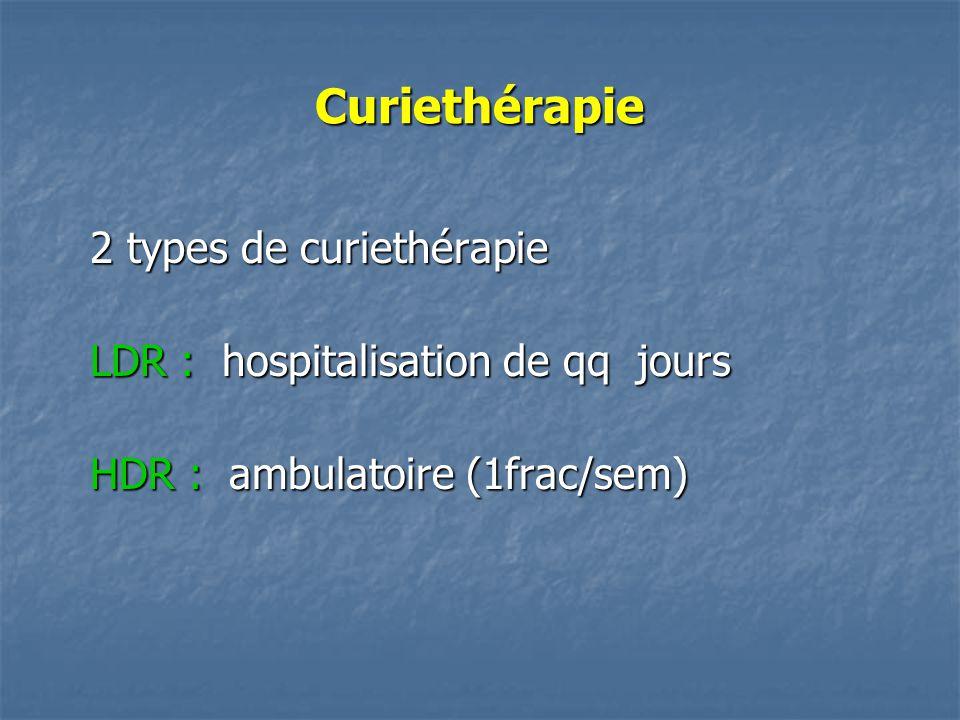 Curiethérapie 2 types de curiethérapie