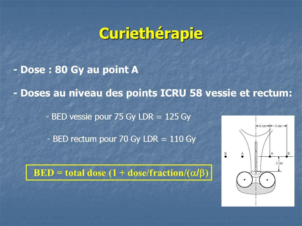 Curiethérapie - Dose : 80 Gy au point A