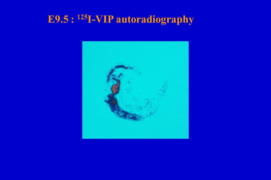 E9.5 : 125I-VIP autoradiography