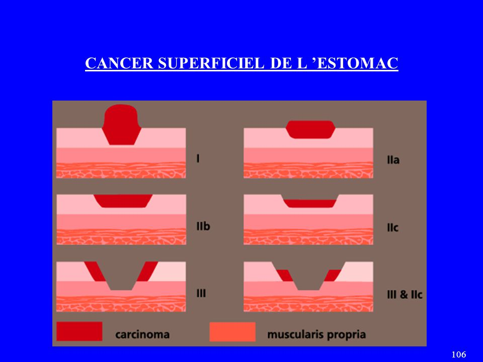 CANCER SUPERFICIEL DE L 'ESTOMAC
