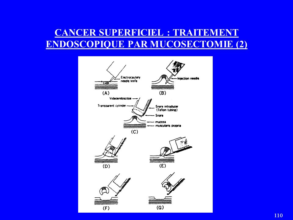 CANCER SUPERFICIEL : TRAITEMENT ENDOSCOPIQUE PAR MUCOSECTOMIE (2)