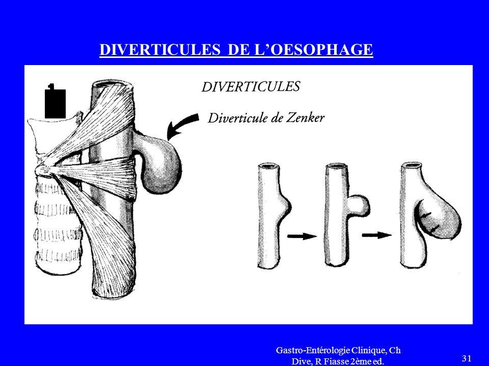 DIVERTICULES DE L'OESOPHAGE