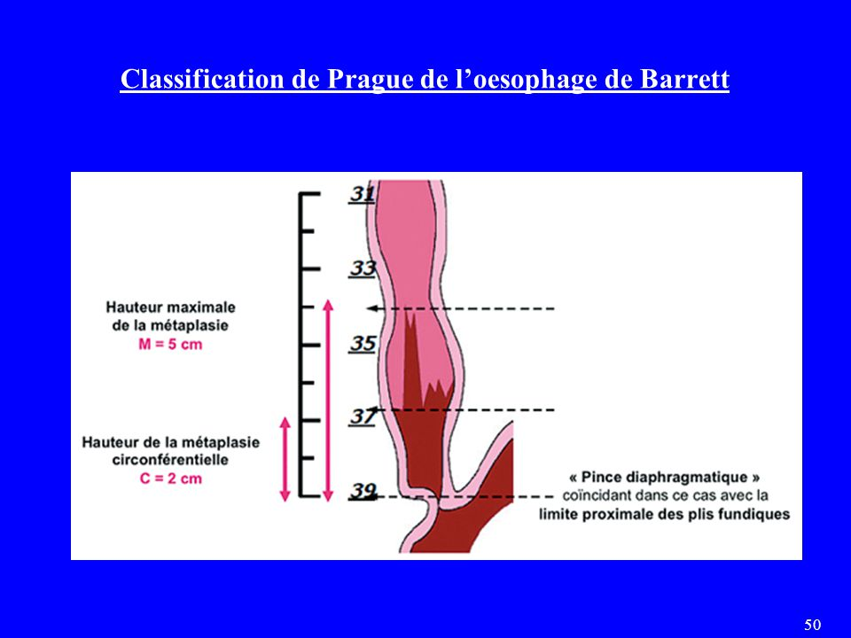 Classification de Prague de l'oesophage de Barrett