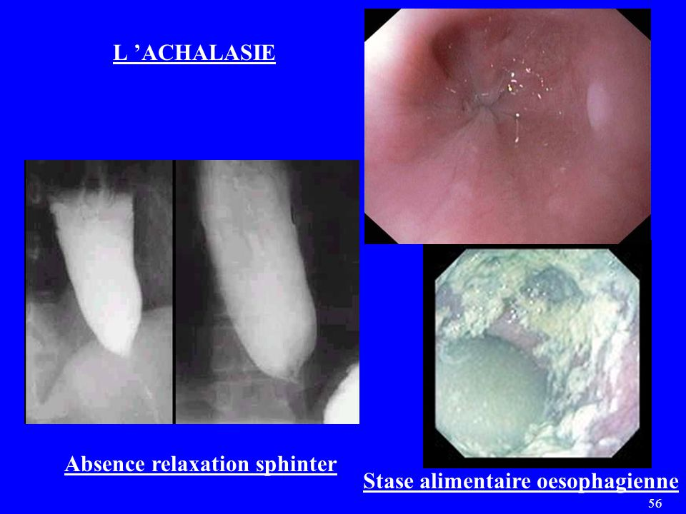 L 'ACHALASIE Absence relaxation sphinter Stase alimentaire oesophagienne