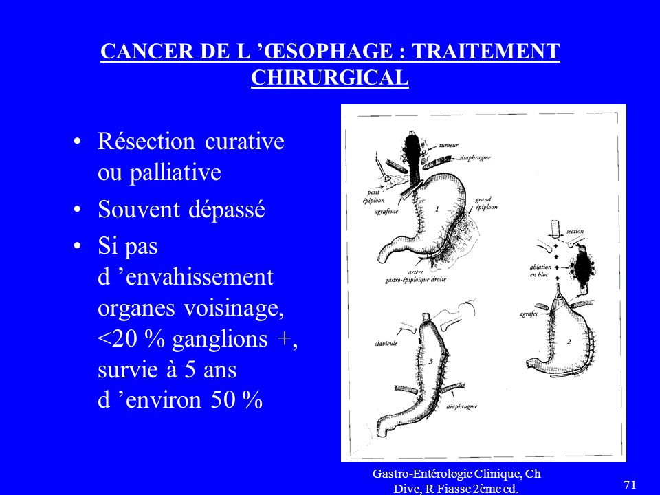 CANCER DE L 'ŒSOPHAGE : TRAITEMENT CHIRURGICAL