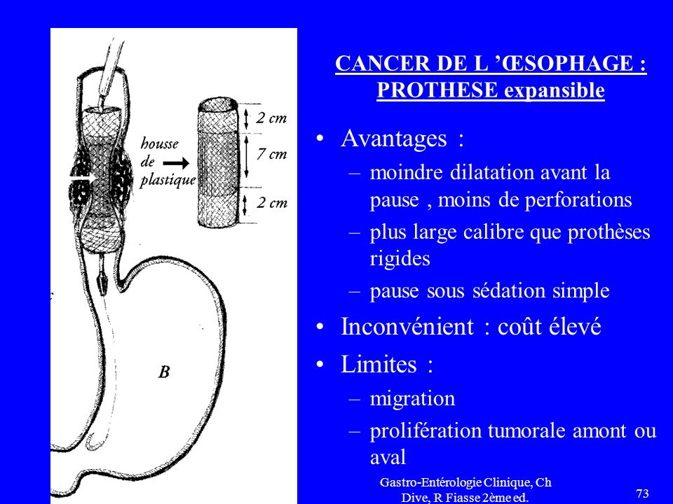 CANCER DE L 'ŒSOPHAGE : PROTHESE expansible