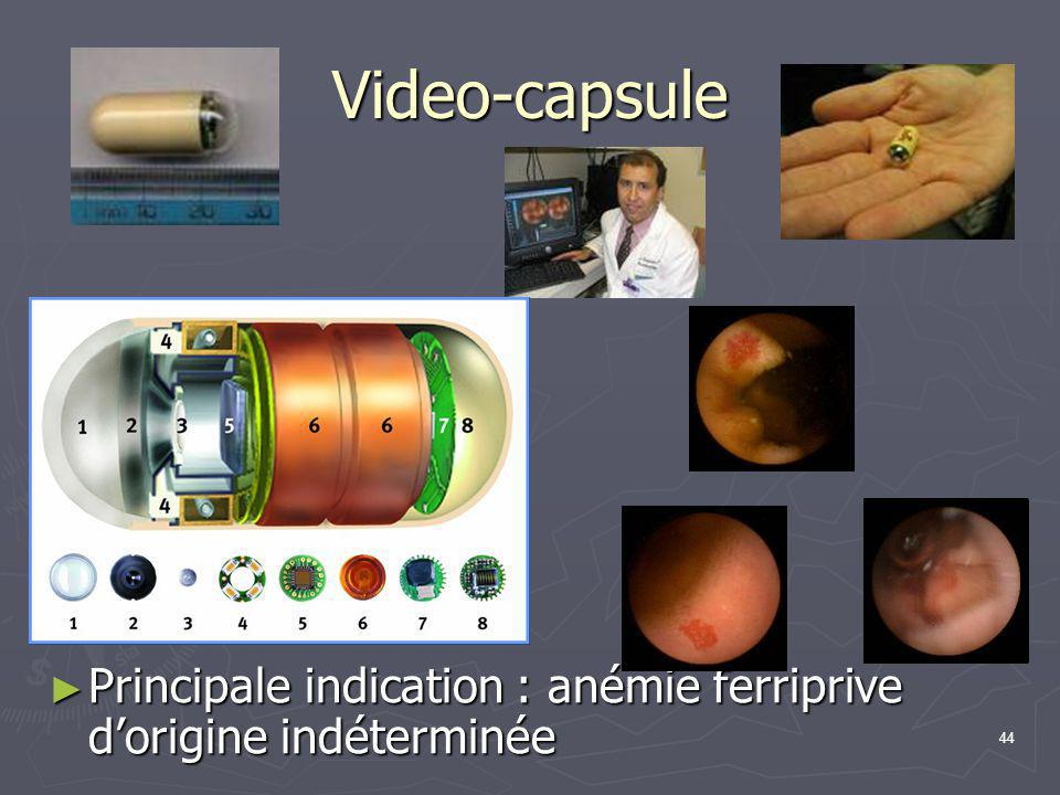 Video-capsule Principale indication : anémie ferriprive d'origine indéterminée