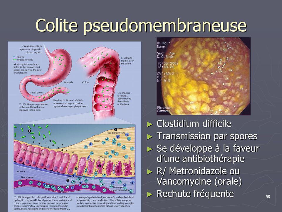 Colite pseudomembraneuse