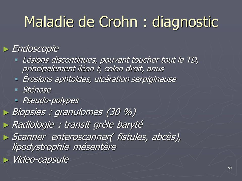Maladie de Crohn : diagnostic