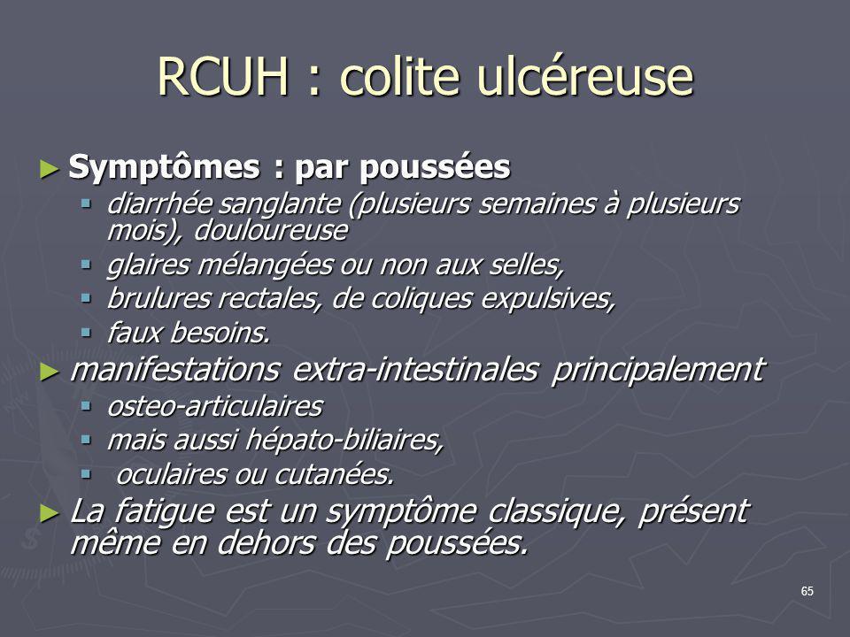 RCUH : colite ulcéreuse
