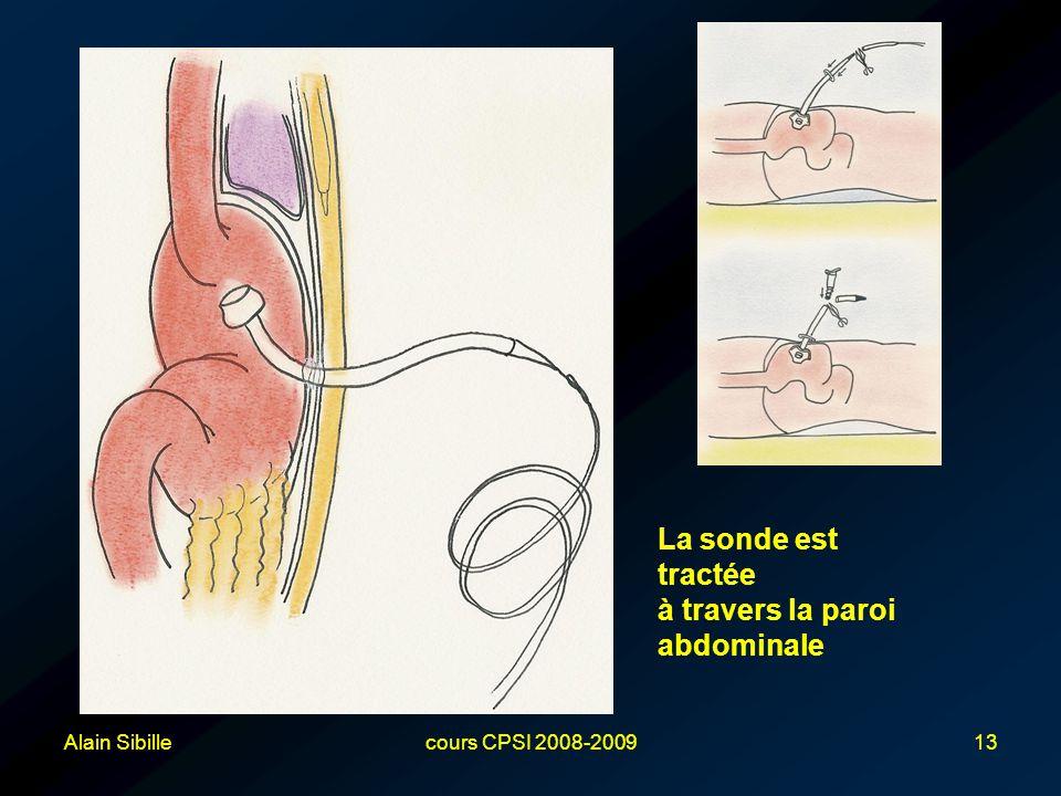 à travers la paroi abdominale