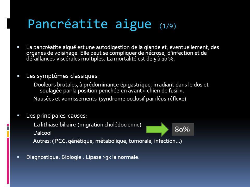 Pancréatite aigue (1/9) 80% Les symptômes classiques: