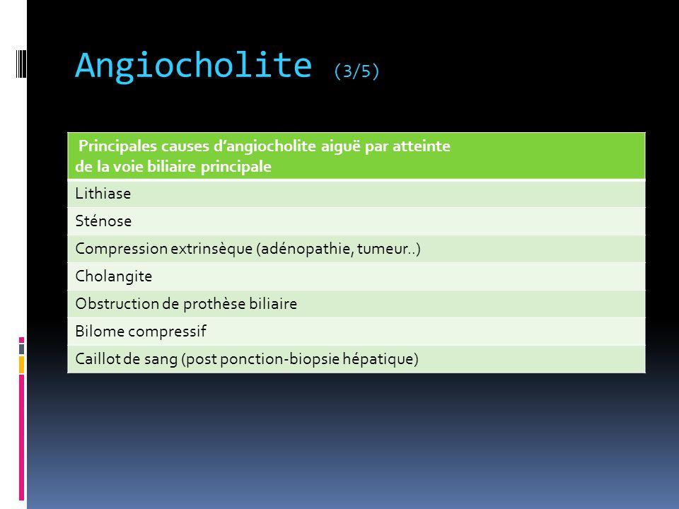 Angiocholite (3/5) Principales causes d'angiocholite aiguë par atteinte. de la voie biliaire principale.