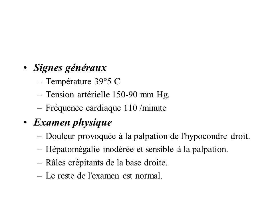 Signes généraux Examen physique Température 39°5 C