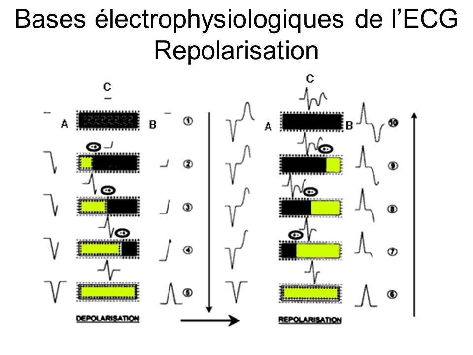 Bases électrophysiologiques de l'ECG Repolarisation