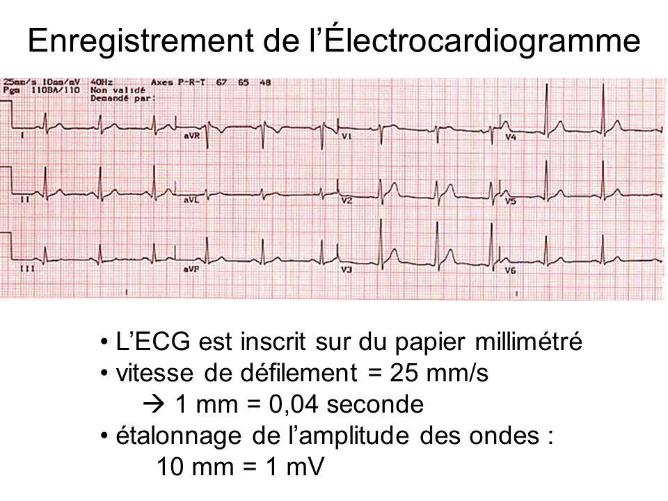 Enregistrement de l'Électrocardiogramme