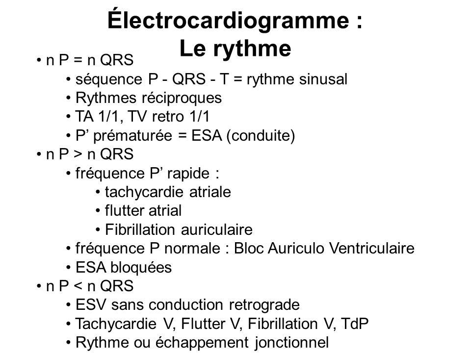 Électrocardiogramme :