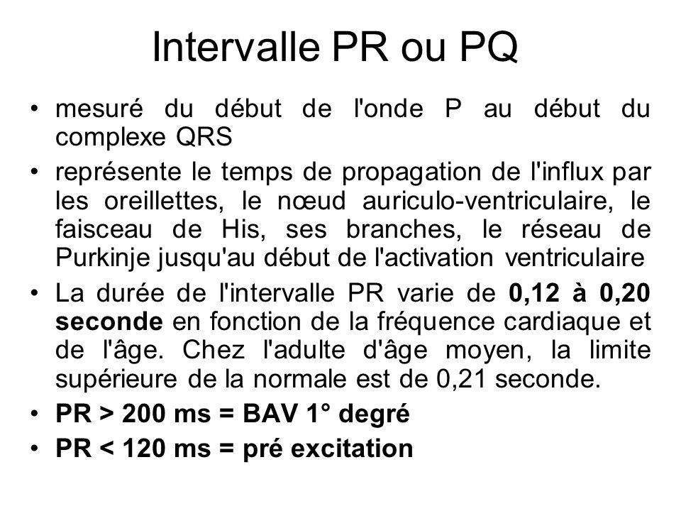 Intervalle PR ou PQ mesuré du début de l onde P au début du complexe QRS.