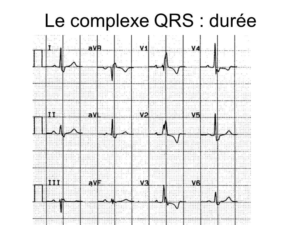 Le complexe QRS : durée